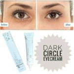 MS Glow Eye Dark Circle Cream Mengatasi Mata Panda
