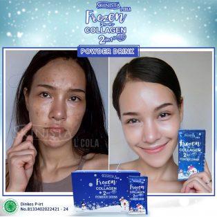 Skinista Frozen Collagen Powder Drink 2 in1